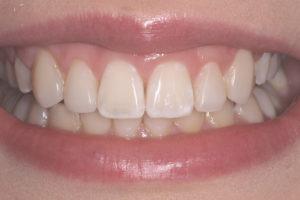 Clínica dental Agurne Uribarri | Cirugía bucal